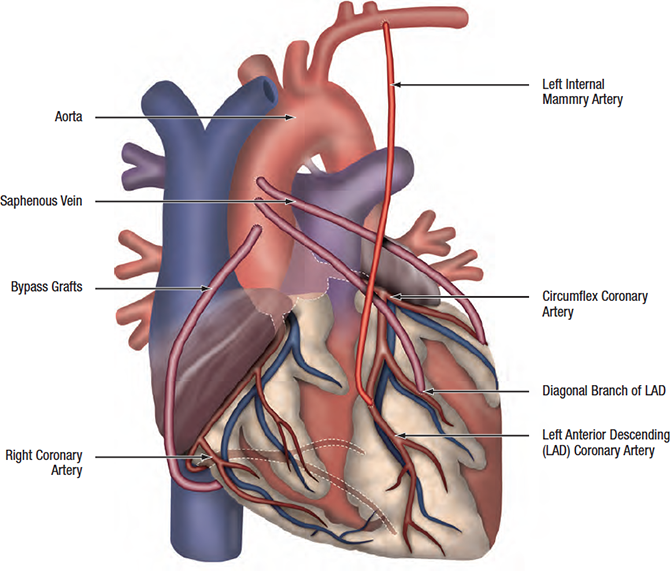 what does a coronary artery bypass surgery